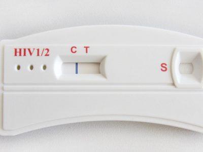 HIV-Test in der AIDS-Hilfe Potsdam wieder möglich